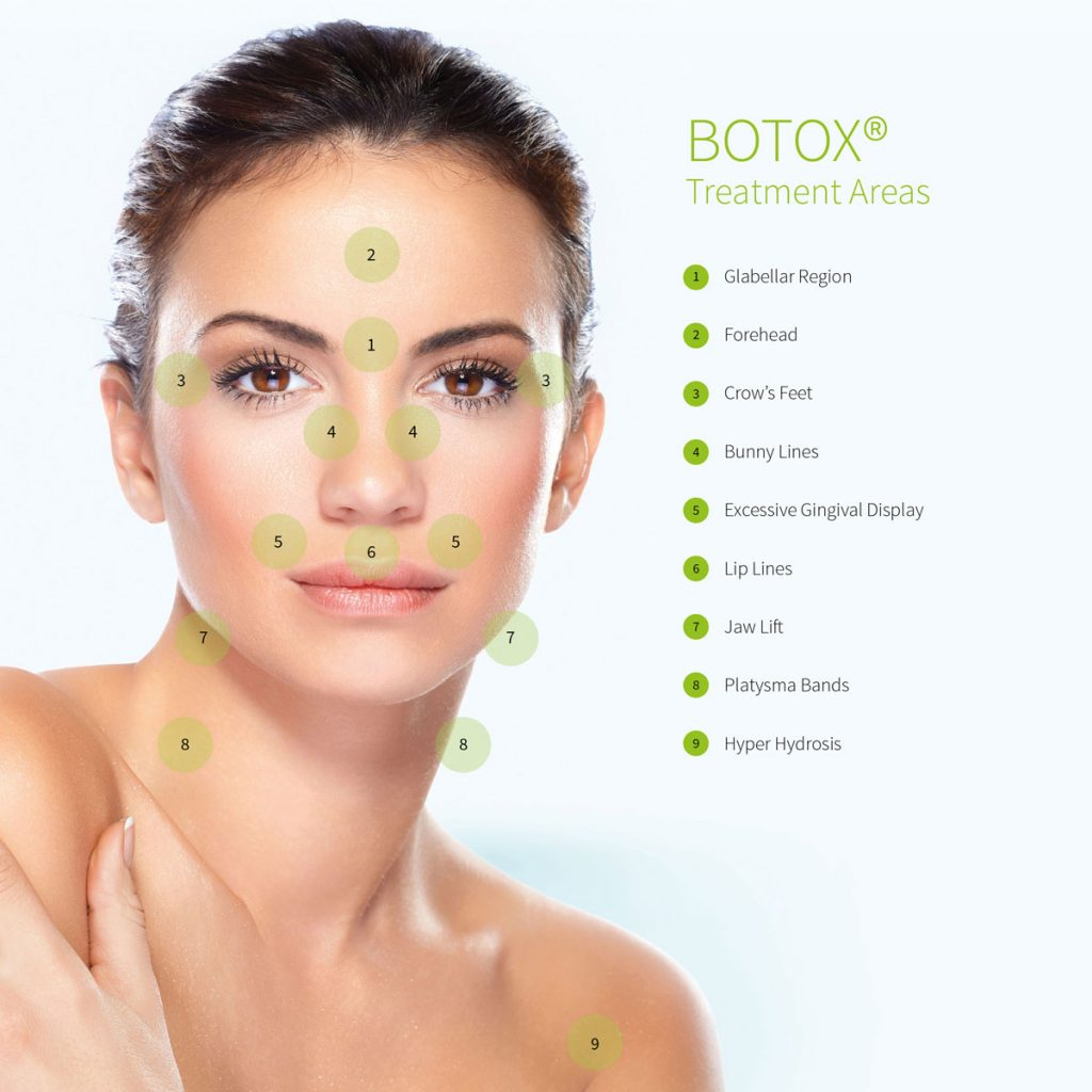 Image of all the areas available for Botox