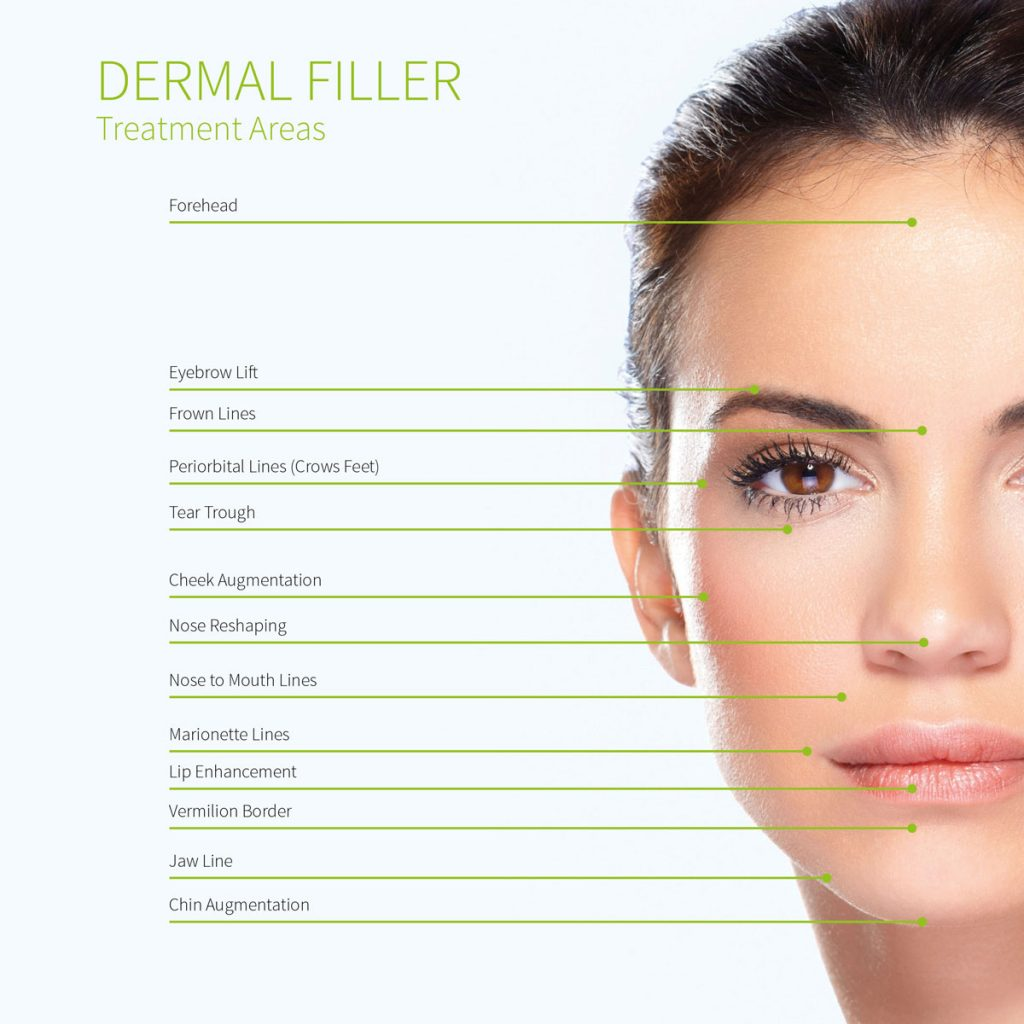 Image of the areas suitable for dermal fillers