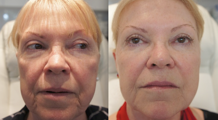Dermal filler treatment before and after older lady