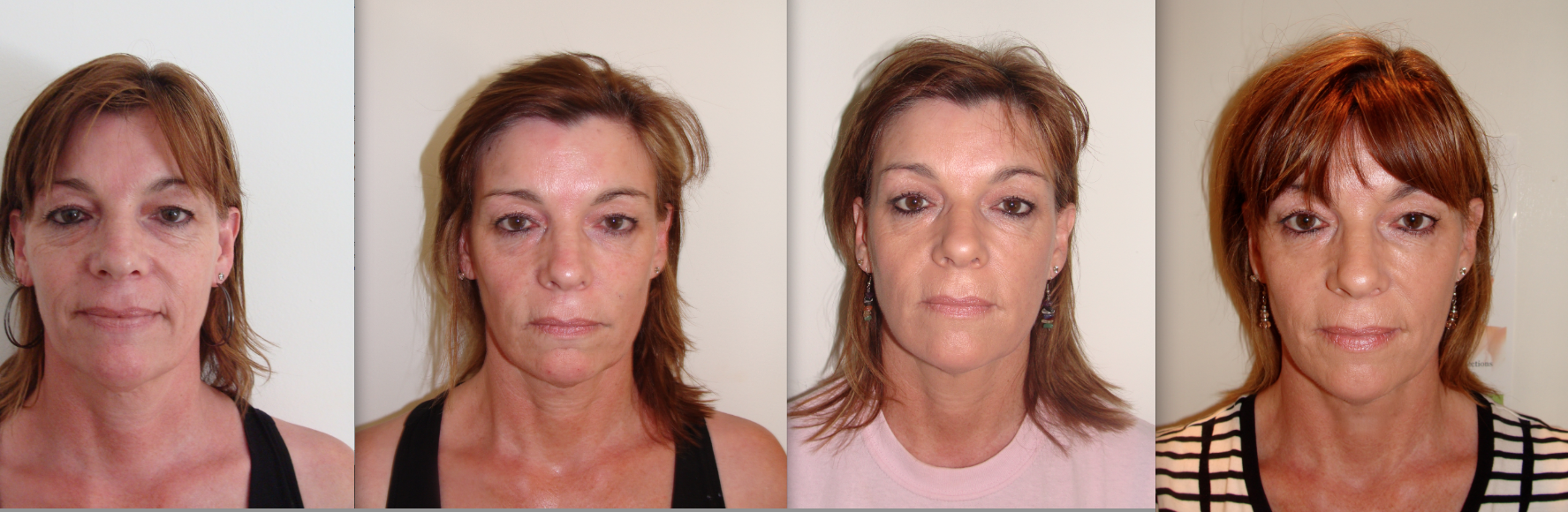 Dermal Fillers before and afters