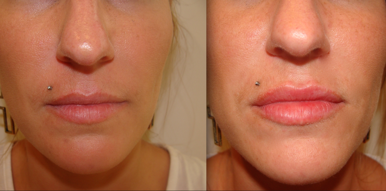 Dermal Filler in the Lips