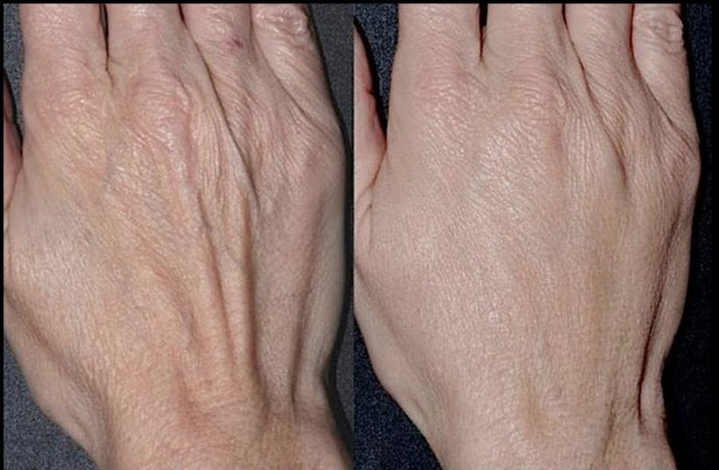 Как сделать чтобы руки выглядели моложе