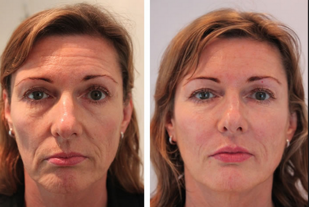 Restylane Vital Skin Boosters 1