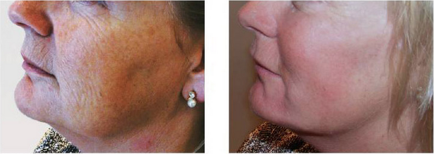 Skin booster before and after