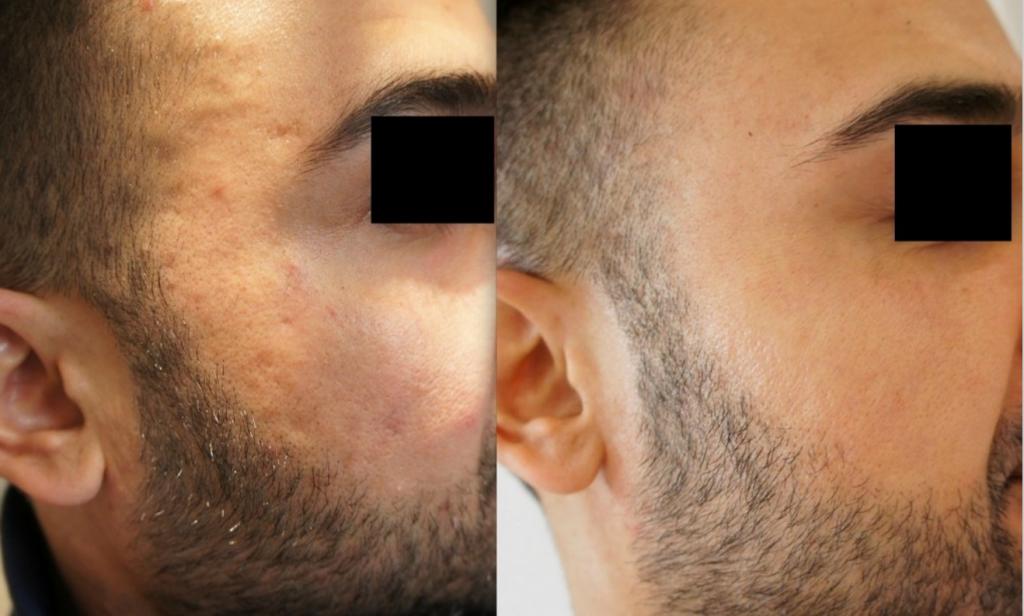 Restylane Vital Skin Boosters 4