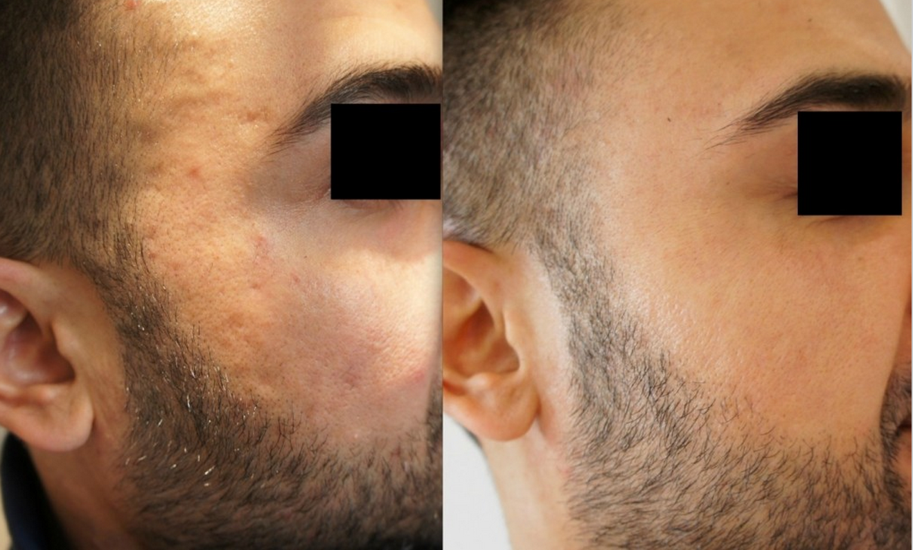 Skin booster acne treatment before and after