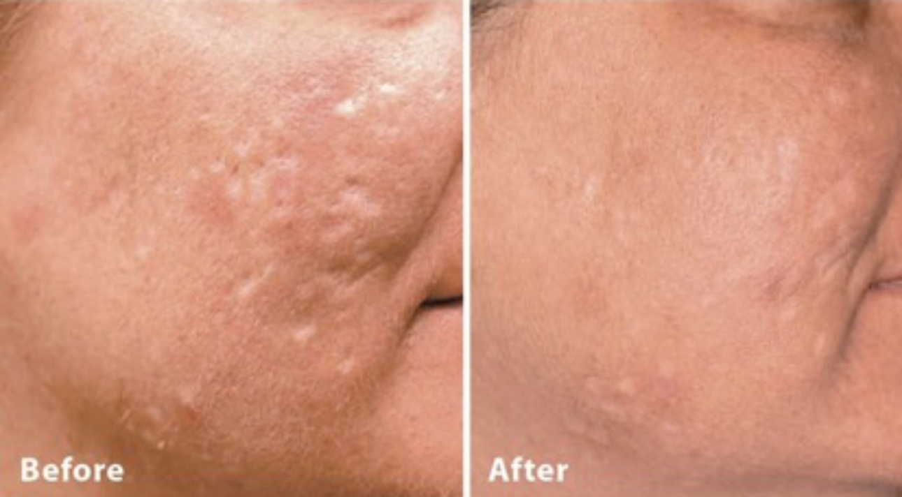 Acne scarring treatment before and after