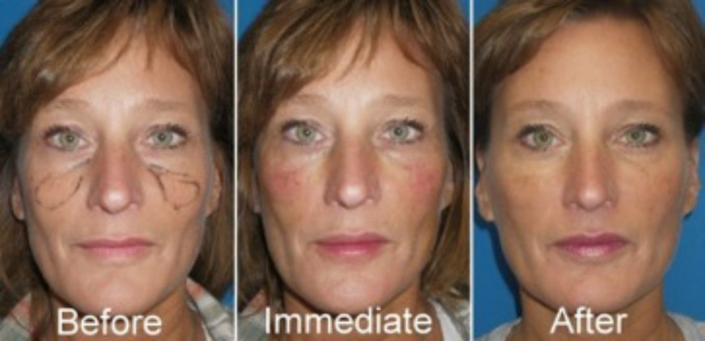 Dermal Fillers Cheeks