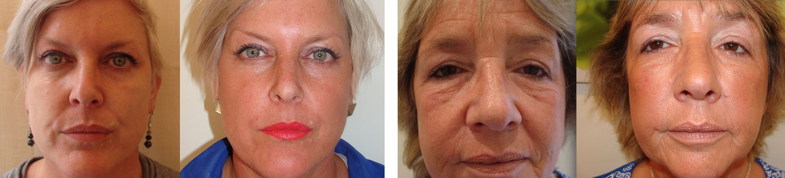 Dermal Filler Treatment Examples