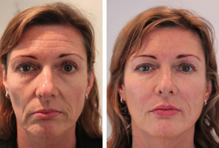 Skin Booster Treatments Restylane Before And After Images