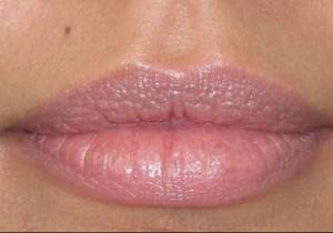 lip enhancement special offer