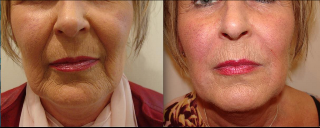 before and after dermal filler in cheeks