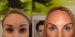 Recent Before and After Photos - Botox, Dermal Filler and Skincare