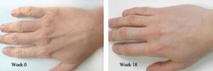 Hand-Before-and-After