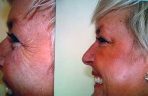 Botox in Bournemouth