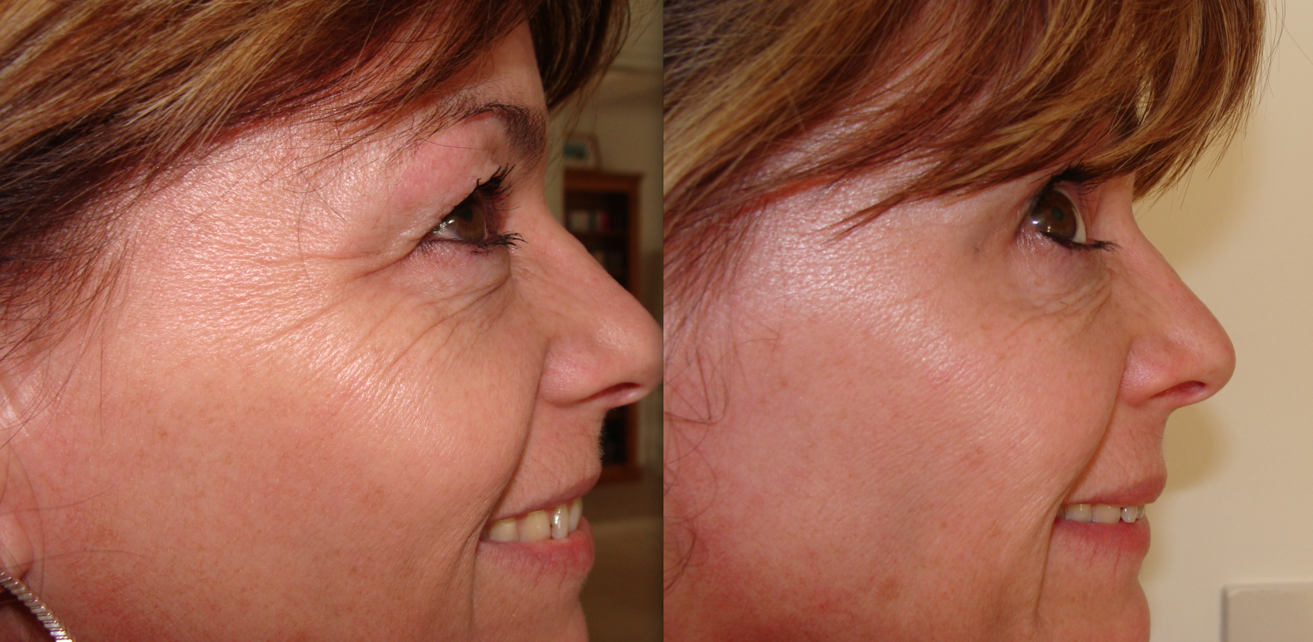 Botox treatment Bournemouth Crows feet before and after