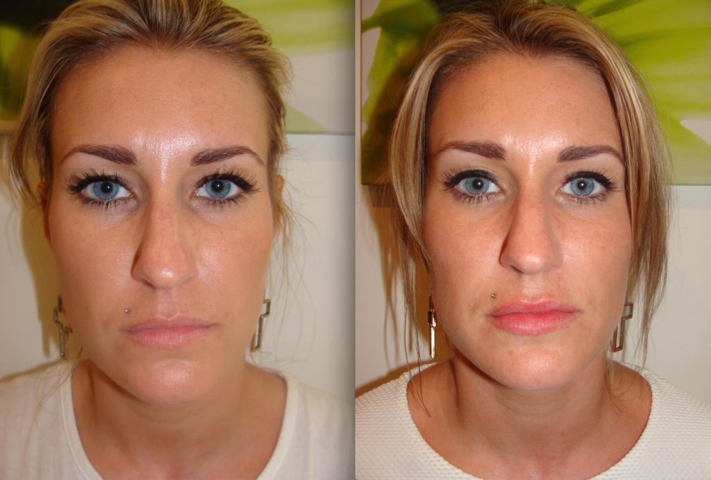 Becky Lips enhancement 2