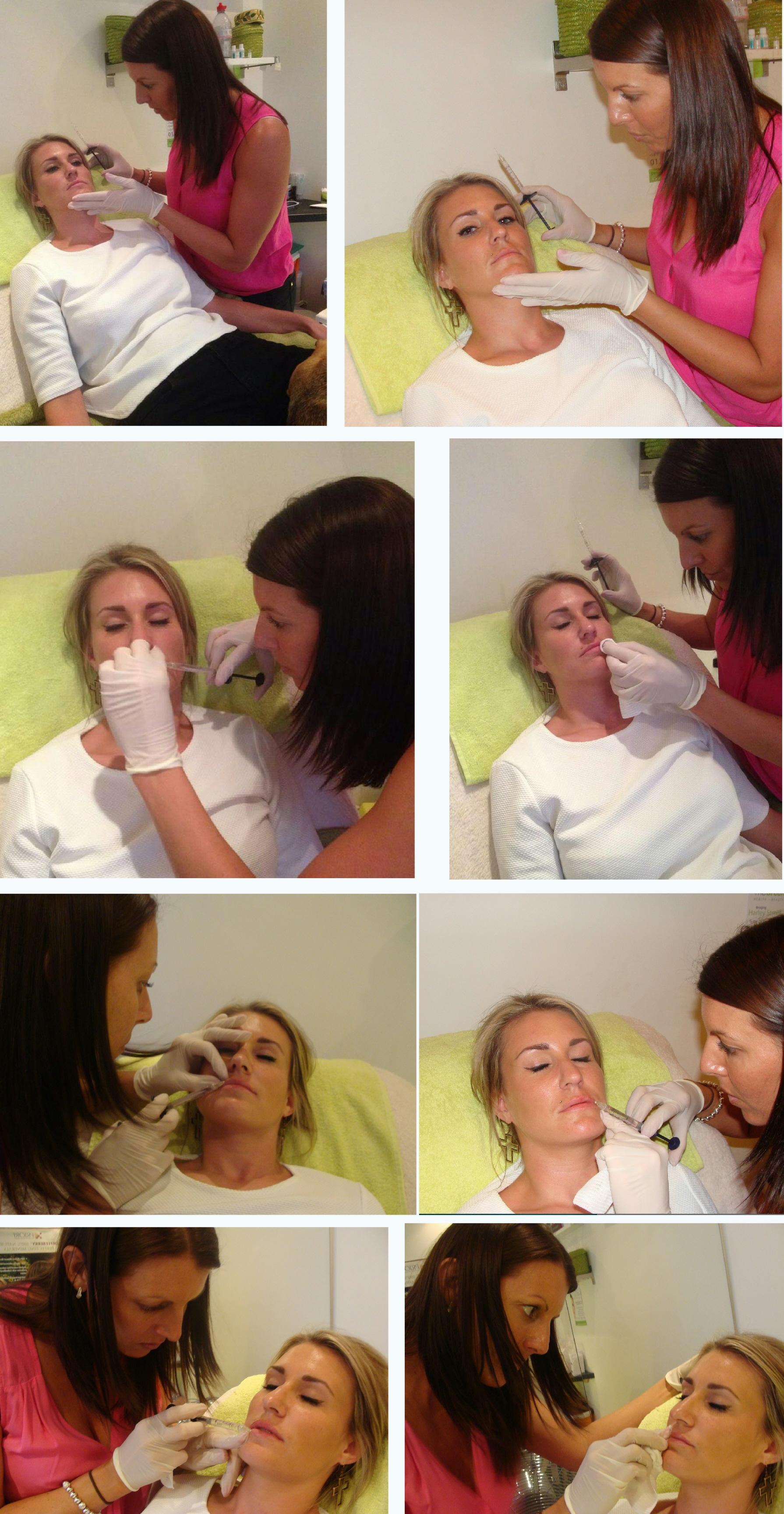 Lip Enhancement Treatment Becky