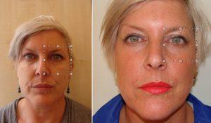 hazel before and after cheek enhancement