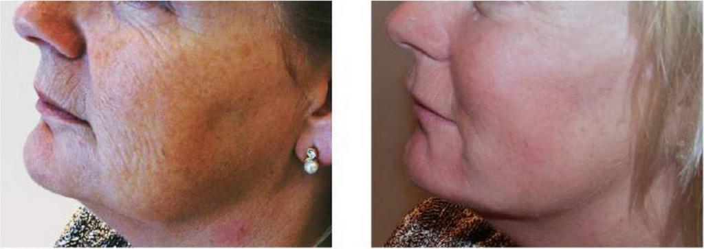 Restylane Vital Skin Boosters 2