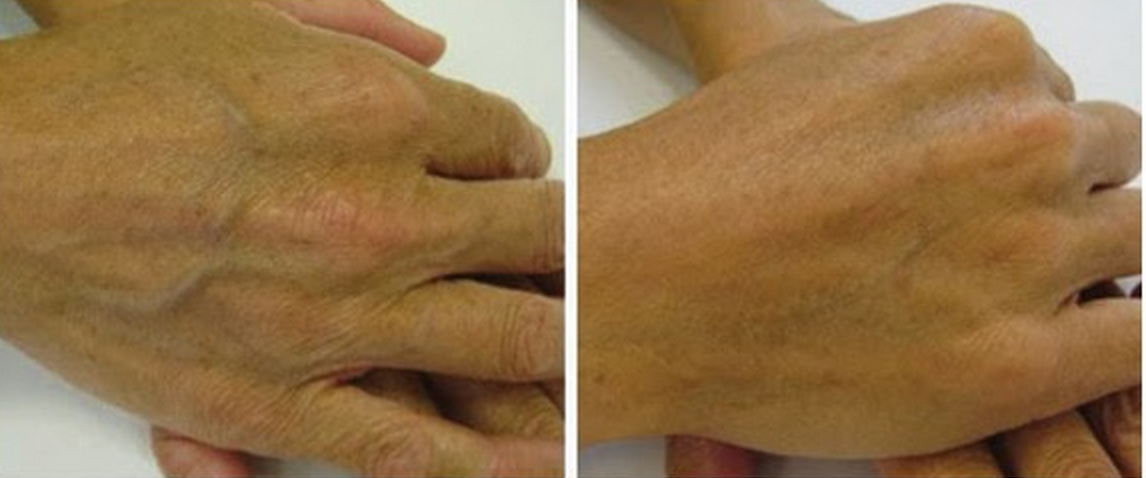 Skin booster hand image before and after