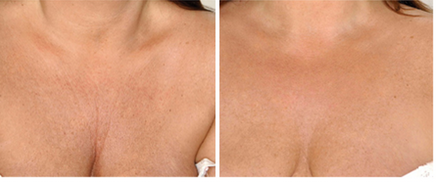 Skin booster cleavage before and after