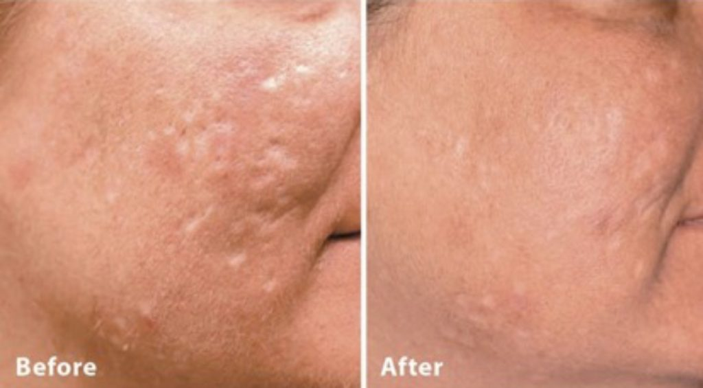 Dermal Fillers Acne Scarring