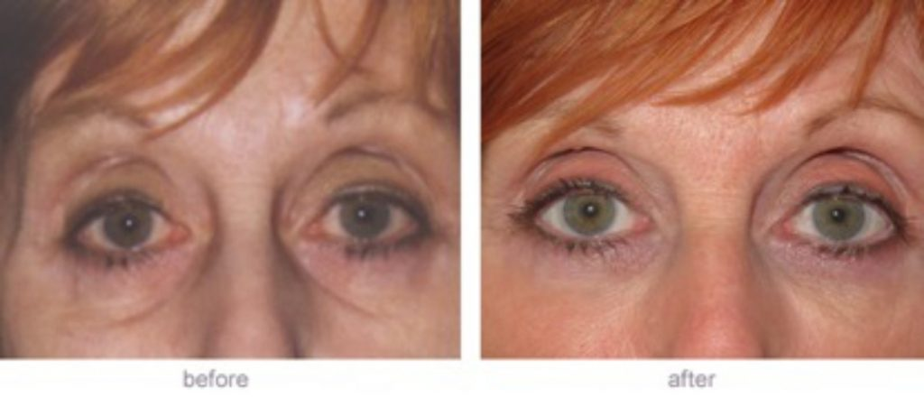Dermal Fillers Eye Trough