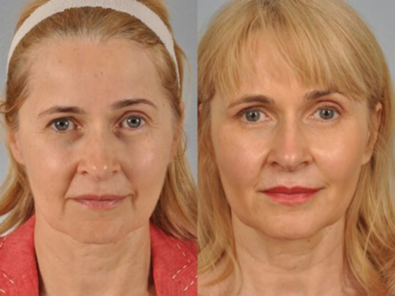 Marionette Lines treated with dermal fillers before and after