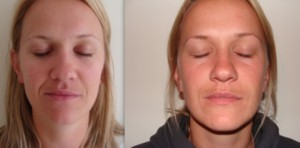 Naso labial line treatment before and after