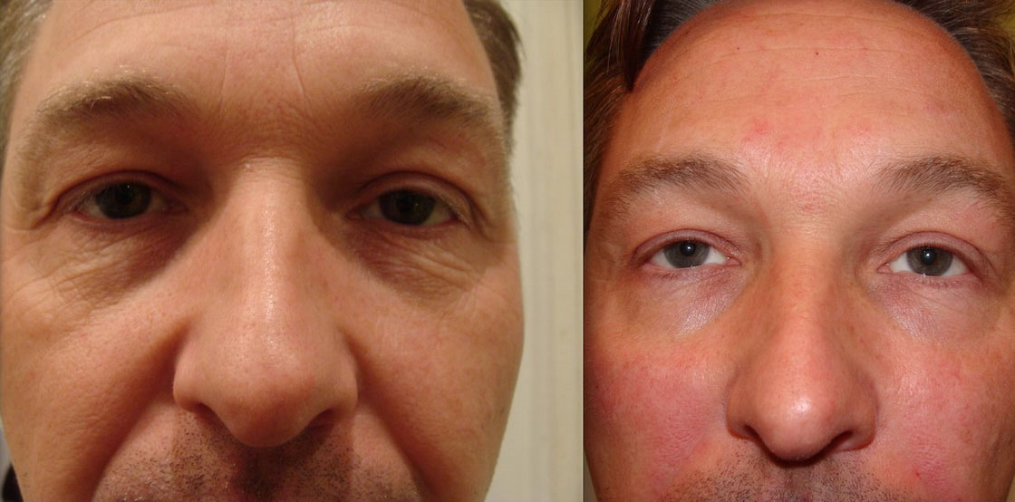 Dermal Filler treatment for men before and afters