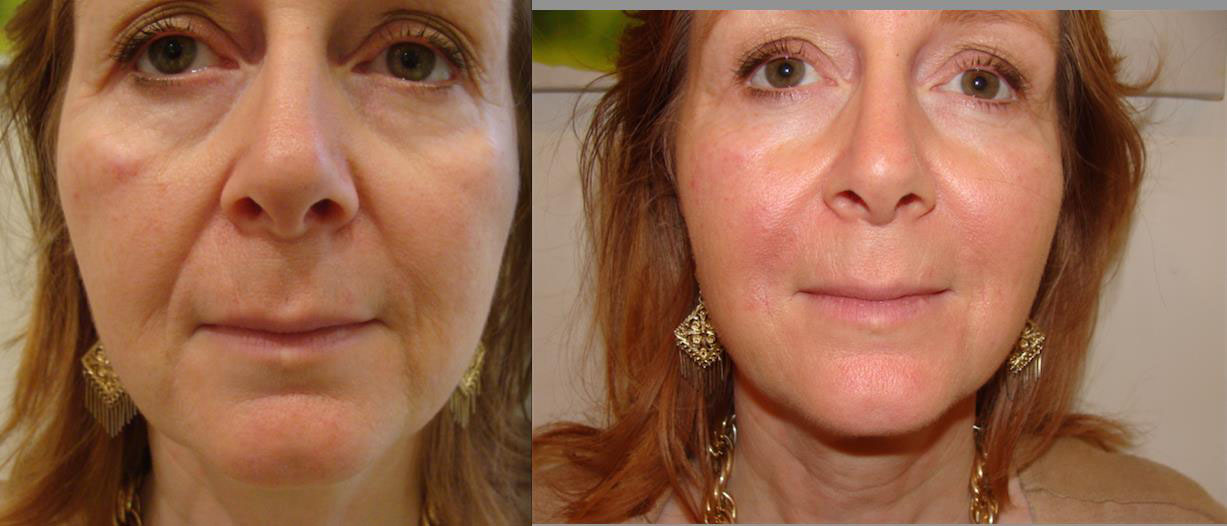Derma Fillers before and after