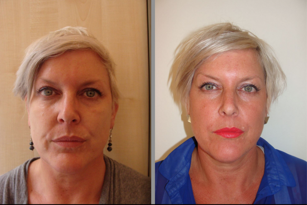 Cheek Enhancement - Dermal Fillers Bournemouth
