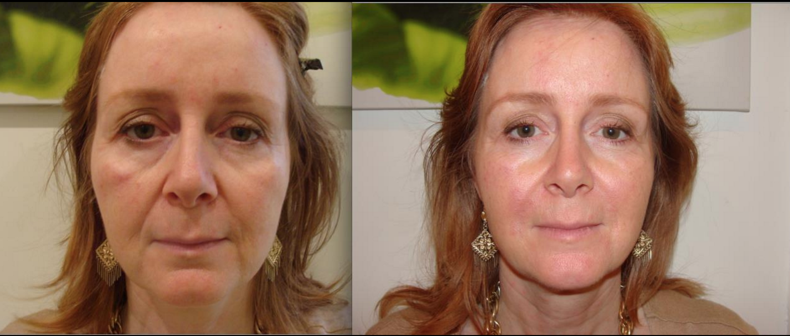 Dermal Fillers In Cheeks Bournemouth